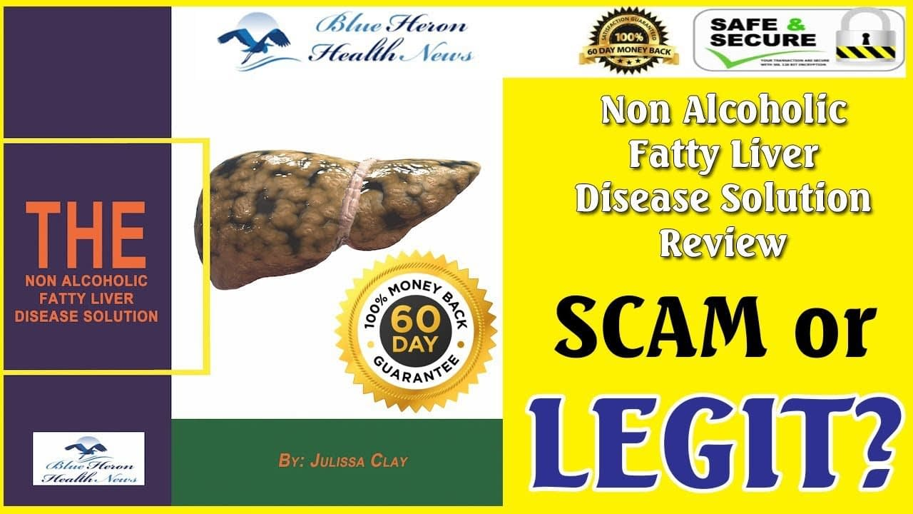 The Non Alcoholic Fatty Liver Disease Solution Review - Is It Scam?