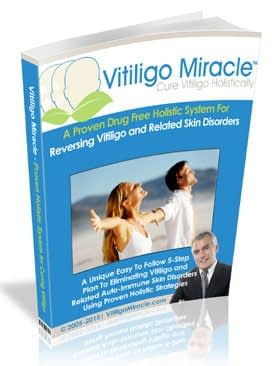 Read Full The Vitiligo Miracle Review Here