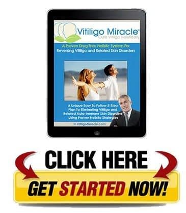 Download Vitiligo Miracle PDF Today