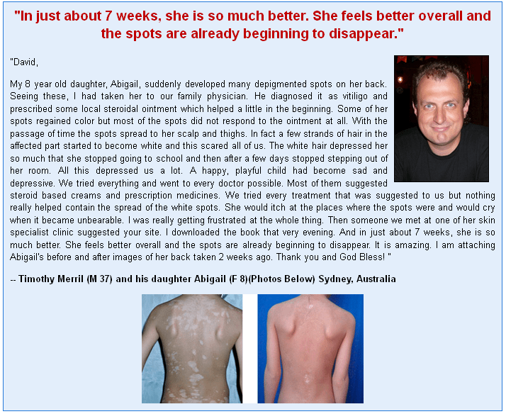 Vitiligo Miracle Customer Reviews